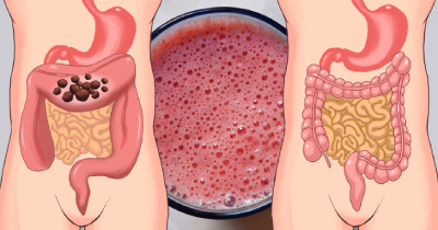 درد روده بزرگ, ویتامین ث در روده بزرگ