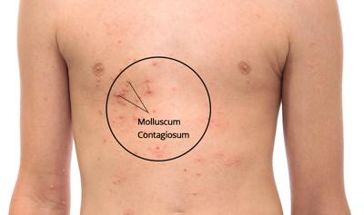 مولوسکوم, درمان سنتی مولوسکوم