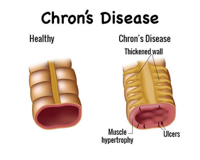غذاهای مفید برای بیماری کرون, علایم اولیه بیماری کرون