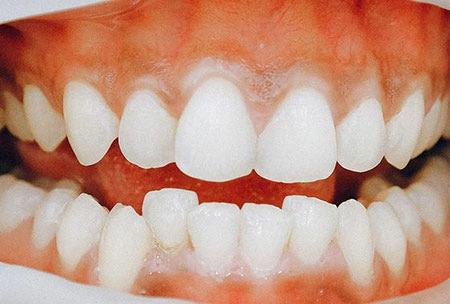 کشیدن دندان برای حل مشکل کراودینگ, روش های درمان کراودینگ, کراودینگ