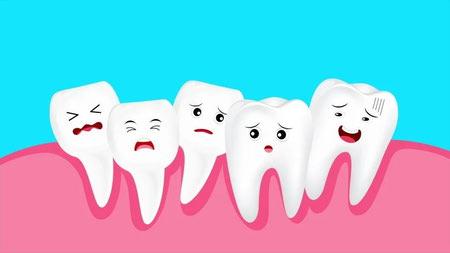 انواع کراودینگ دندان, نامرتبی دندانها, کراودینگ دندان چیست