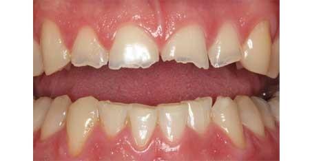 پوسیدگی دندان, شایع ترین علت های خرد شدن دندان ها, درمان خرد شدن دندان