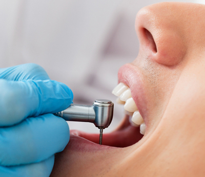 عفونت دندان روکش شده, نشانهای عفونت دندان
