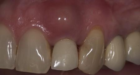 جوش لثه در کودکان, درمان جوش چرکی دندان, درمان خانگی جوش لثه