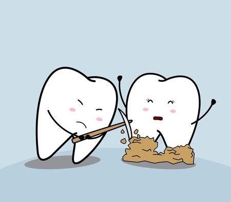 روش خانگی درمان تارتار دندان, تارتار دندان, تارتار دندان چیست