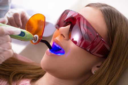 پر کردن دندان با کامپوزیت, پر کردن دندان, نحوه پر کردن دندان با کامپوزیت, بهترين مواد پركردن دندان