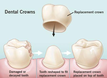 تاج دندان, تاج دندان چیست, ترمیم تاج دندان