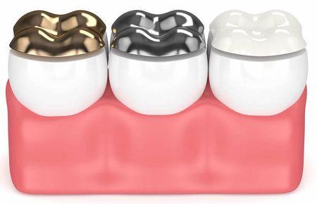ساخت تاج دندان, انواع تاج دندان, نحوه مراقبت از تاج دندان