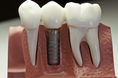 تاج دندان چیست, ترمیم تاج دندان, ترمیم کل تاج دندان