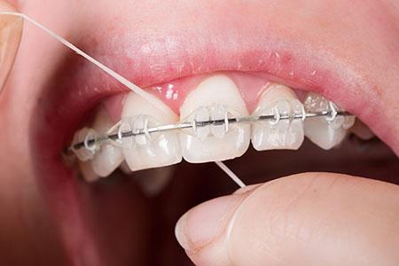 نخ دندان کشیدن حین ارتودنسی, طریقه نخ دندان کشیدن در ارتودنسی