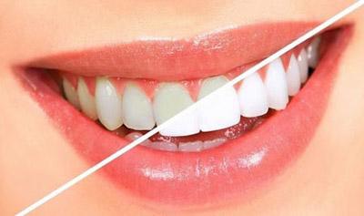 علائم فلوئوروزیس دندانی, جلوگیری از فلوروزیس