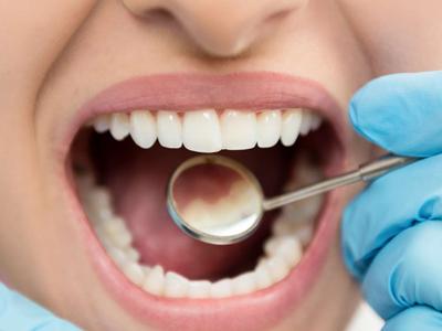 از بین بردن پلاک دندان به طور طبیعی, روشهای خانگی از بین بردن پلاک دندان