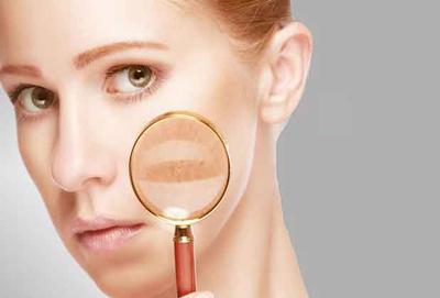 راه های تشخیص بیماری کبد, تشخیص بیماری پوستی