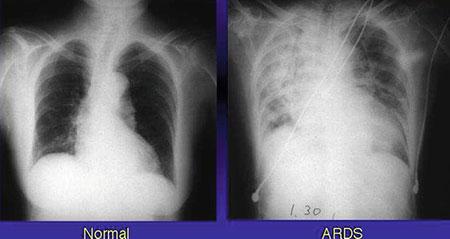 سندرم دیسترس تنفسی نوزادان , سندروم زجر تنفسی حاد