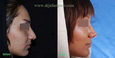 هزینه جراحی بینی های استخوانی
