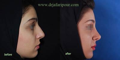 جراحی زیبایی بینی,جراحی بینی,جراحی پلاستیک بینی