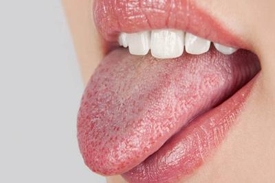 رفع خشکی دهان, درمان خشکی دهان