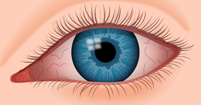 خشکی چشم و درمان آن, علت خشکی چشم