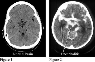 التهاب مغز یا آنسفالیت, اس تی لوئیس آنسفالیت