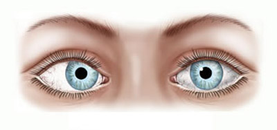 عمل انحراف چشم, درمان انحراف چشم با ورزش