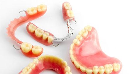 انواع دندان مصنوعی ثابت, ویزگی دندان مصنوعی خوب