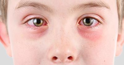 التهاب ملتحمه چیست, کنژنکتیویت انکلوزیونی