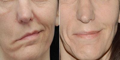 درمان فلج صورت, همه چیز درباره فلج صورت