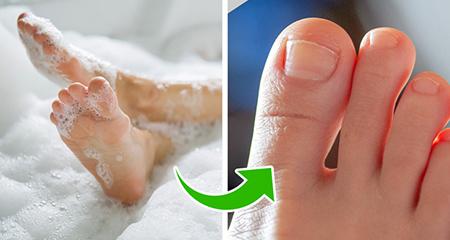 لایه برداری از پاها ، فرو رفتن ناخن در گوشت
