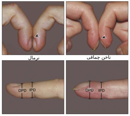 نشانه های سرطان ریه, تشخیص سرطان ریه