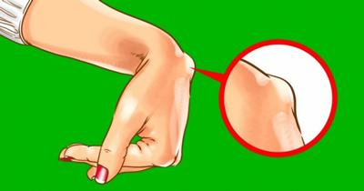 علل شایع کیست مچ دست, عوارض کیست مچ دست