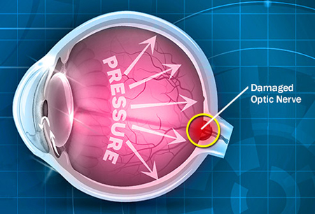 آب سیاه چشم پیشگیری,علت آب سیاه چشم