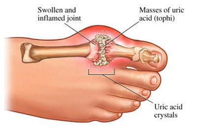 درمان گیاهی نقرس|عوارض بیماری نقرس|حملات نقرس