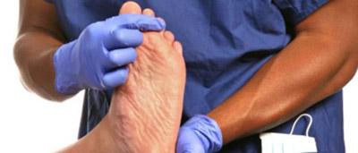 درمان درد نقرس|بیماری نقرس|در مورد بیماری نقرس