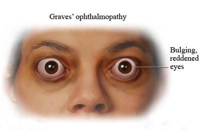 درمان بیماری چشمی گریوز,درمان اصلی بیماری گریوز