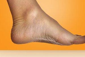 یک راه ساده برای رفع زق زق و درد پا - فیزیوتراپیست وحید صادقی