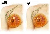 سرطان سینه, بیماری زنان, درمان سرطان سینه