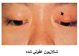 شالازیون, درمان شالازیون, گلمژه چیست