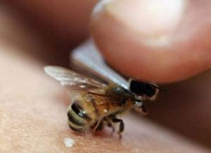 آنتی بیوتیک, توصیه های پزشکی, زنبورگزیدگی