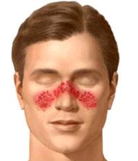 راش, بیماری لوپوس, درمان لوپوس