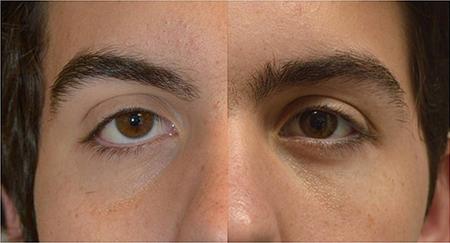 افتادگی پلک,پیشگیری ازافتادگی پلک, درمان افتادگی پلک