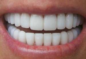 حساسیت دندان, درمان حساسیت دندانی