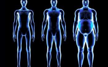 بالون معده, درمان چاقی