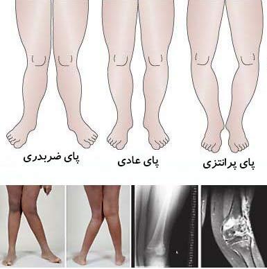پاهای پرانتزی, کفش طبی