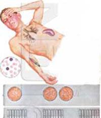 حصبه, بیماریهای عفونی, تب تیفویید