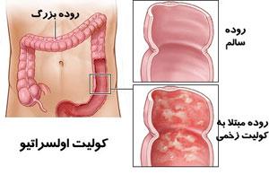 بیماری کوليت اولسراتيو, کولیت زخمی شونده