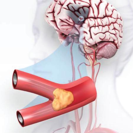 عوارض سکته مغزی, دلایل سکته مغزی