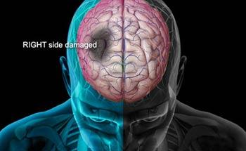 علایم سکته مغزی, دلایل سکته مغزی