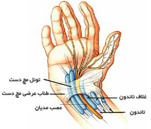 مراقبت از مچ دست, بیماری شایع مچ دست