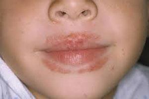انواع حساسیتهای پوستی, بیماری پوستی