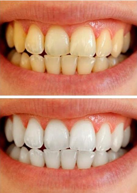 Image result for سفید کننده های کاملا طبیعی دندان